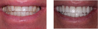 60 year old male treated for worn down teeth caused by bruxism also known as teeth grinding.