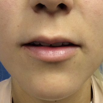 18-24 year old woman treated with Juvederm Ultra plus before 3727283