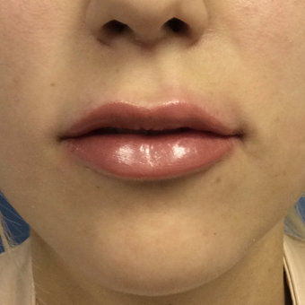 18-24 year old woman treated with Juvederm Ultra plus after 3727283