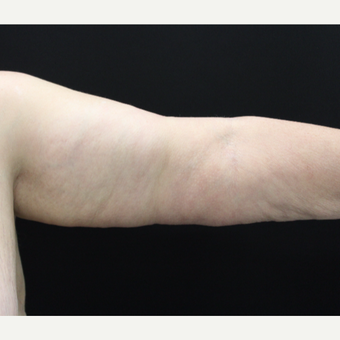 55-64 year old woman treated with Arm Lift after 3665315