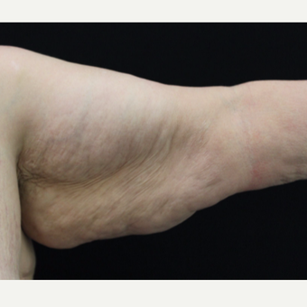 55-64 year old woman treated with Arm Lift before 3665315