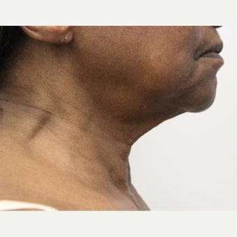 65-74 year old woman treated with Ultherapy