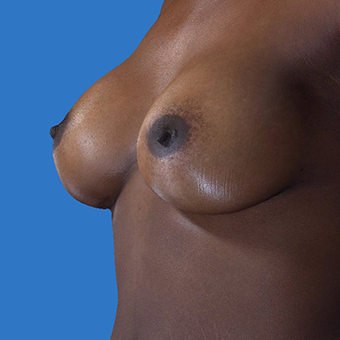 35-44 year old woman treated with Breast Augmentation after 3767899
