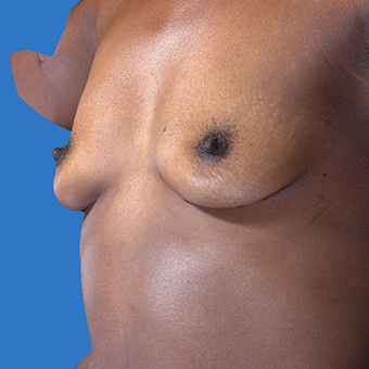 35-44 year old woman treated with Breast Augmentation before 3767899