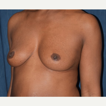 35-44 year old woman treated with Breast Augmentation before 2985978