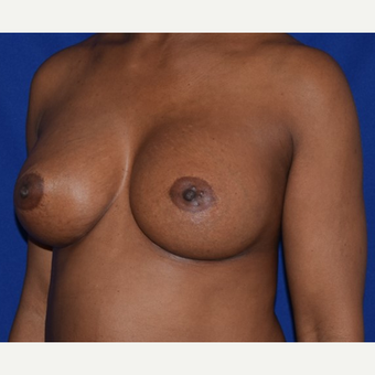 35-44 year old woman treated with Breast Augmentation after 2985978