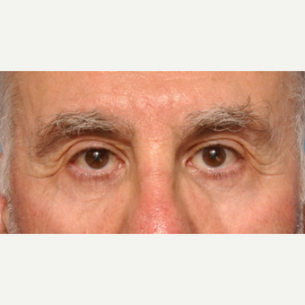 Lower Eyelid Surgery with Fat Pad Removal and Laser Resurfacing after 3691684