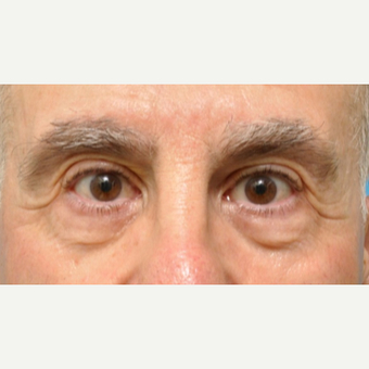 Lower Eyelid Surgery with Fat Pad Removal and Laser Resurfacing before 3691684