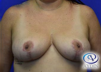 45-54 year old woman treated with Breast Lift after 3213851