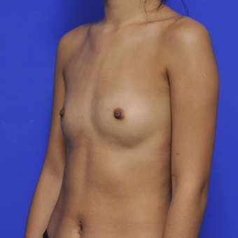 25-34 year old woman treated with Breast Augmentation before 3464048
