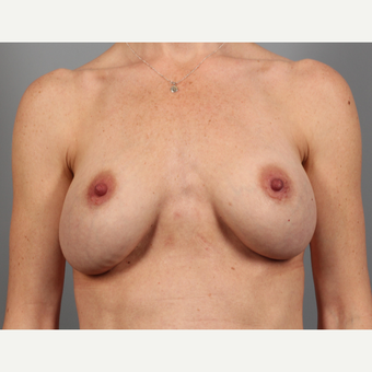 35-44 year old woman treated with Breast Implant Revision with SurgiMend before 3258531