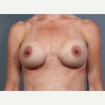 35-44 year old woman treated with Breast Implant Revision with SurgiMend after 3258531