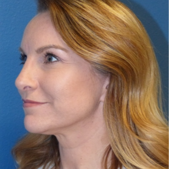 Rhinoplasty after 3806801