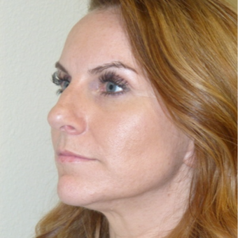 Rhinoplasty before 3806801