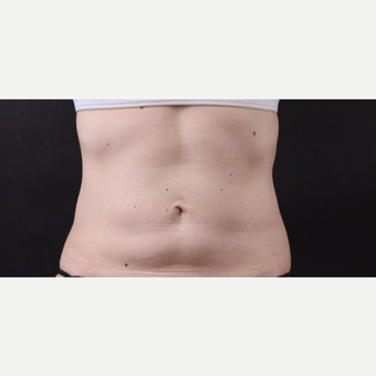 49 year old woman treated with CoolSculpting after 3630234