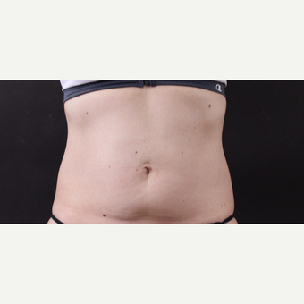 49 year old woman treated with CoolSculpting before 3630234