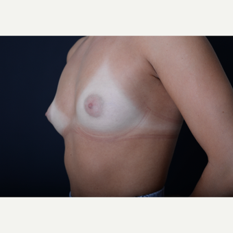 18-24 year old woman treated with Breast Augmentation before 3384257