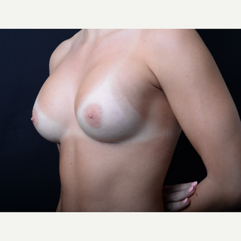 18-24 year old woman treated with Breast Augmentation after 3384257