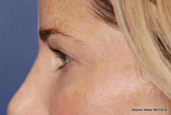 Upper and Lower Blepharoplasty 497798