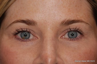 Upper and Lower Blepharoplasty after 497798