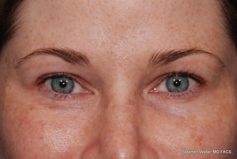 Upper and Lower Blepharoplasty before 497798