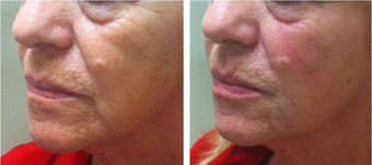 55-64 year old woman treated with Restylane Lyft after 2697719