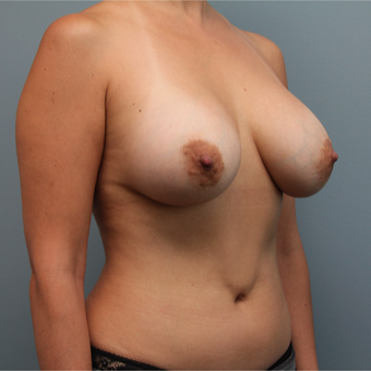 42 year old woman treated with Mentor Saline Breast Implants after 3390789