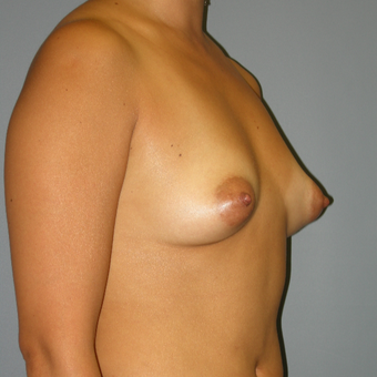 42 year old woman treated with Mentor Saline Breast Implants before 3390789