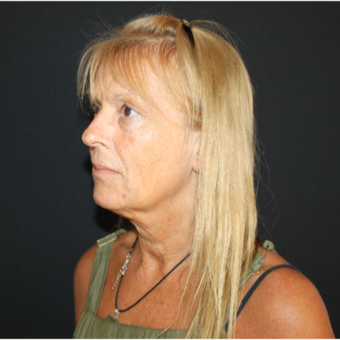 55-64 year old woman treated with Facelift before 3493644