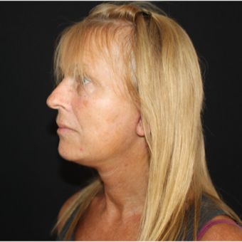 55-64 year old woman treated with Facelift after 3493644