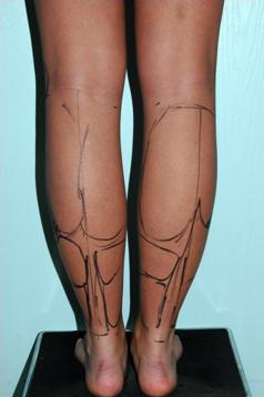 Calve and Ankle Liposculpture 1277263