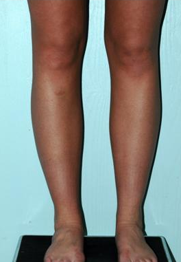 Calve and Ankle Liposculpture after 1277263