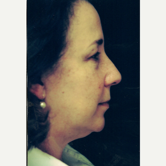 45-54 year old woman treated with Facelift before 3271757