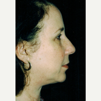 45-54 year old woman treated with Facelift after 3271757