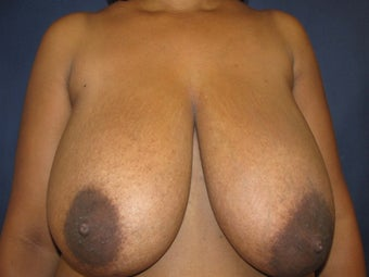 Breast Reduction before 291340