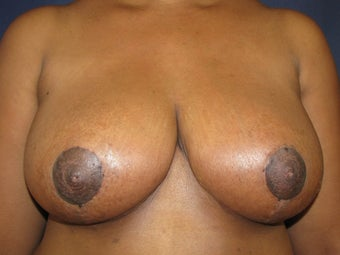 Breast Reduction after 291340