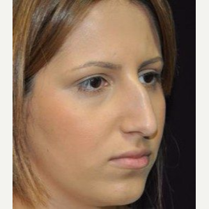 Rhinoplasty before 3148713