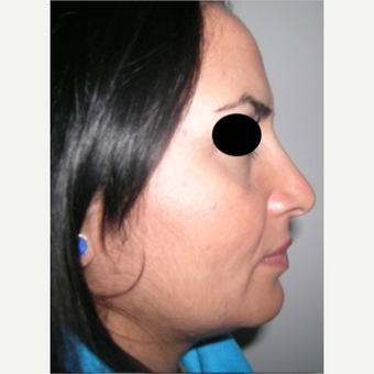 18-24 year old woman treated with Rhinoplasty after 3185244