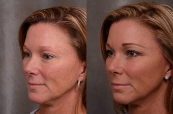 48 Years Old Facial Rejuvenation with Juvederm Voluma 1498243