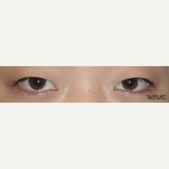 18-24 year old woman treated with Asian Eyelid Surgery before 2042704