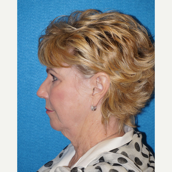 68 year old woman treated with Facelift before 3576642