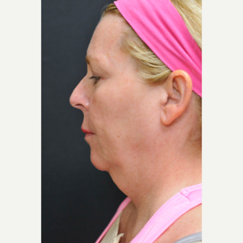 45-54 year old woman treated with Facelift before 3333478