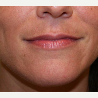 25-34 year old woman treated with Restylane before 3372384