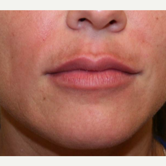 25-34 year old woman treated with Restylane after 3372384