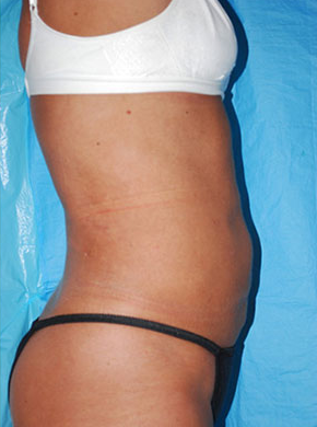 Smart Lipo after 2487666
