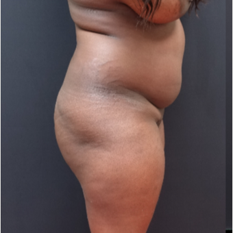 25-34 year old woman treated with Butt Augmentation before 3363840