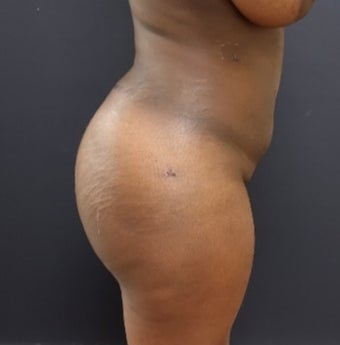 25-34 year old woman treated with Butt Augmentation after 3363840
