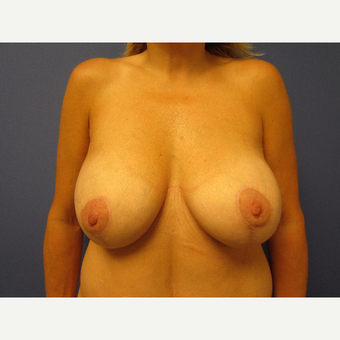 35-44 year old woman treated with Breast Lift with Implants after 3577583