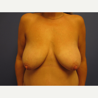 35-44 year old woman treated with Breast Lift with Implants before 3577583