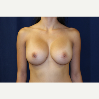 25-34 year old woman treated with Breast Augmentation after 3776280